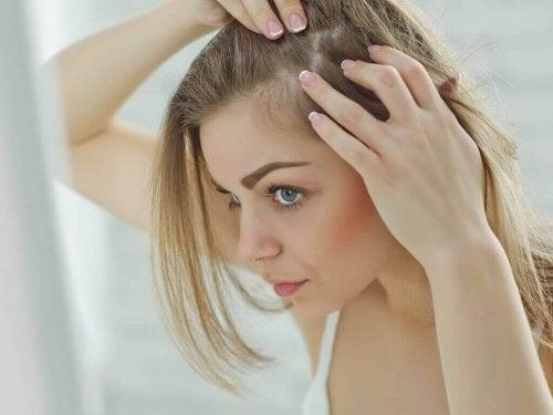 Luontaishoitoja herkälle päänahalle