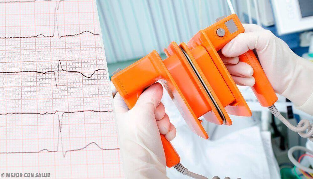 Sydämen eteisvärinän diagnosointimenetelmät