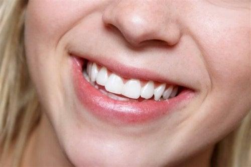 Aloe vera hoitaa hampaiden terveyttä