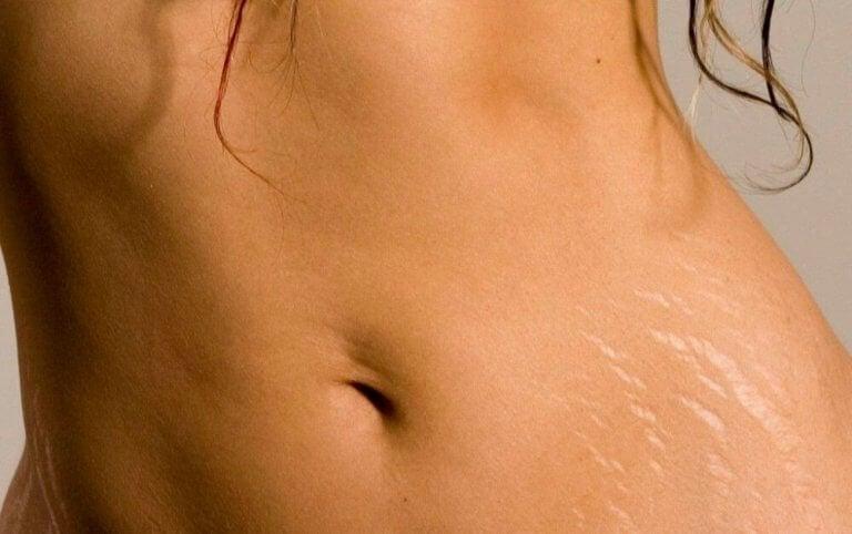 Alunakivikiteet auttavat raskausarpiin