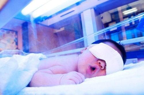 Sinivalohoito on yksi vastasyntyneen keltataudin hoitomenetelmistä