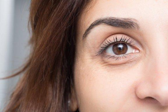 Tummien silmänalusten hoito: 10 takuuvarmaa keinoa