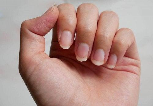 Hauraiden kynsien hoito: 9 kotikonstia