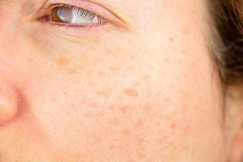 Ihon pigmenttiläiskät ovat vaaraton, mutta esteettisesti häiritsevä ihovirhe