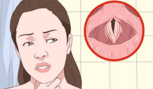 Kurkunpääntulehduksen oireisiin kuuluvat muun muassa äänen käheys, kuiva yskä ja epämiellyttävä tunne kurkussa