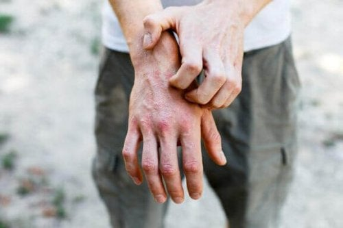 Kosketusihottuman hoito 6 kotikonstilla