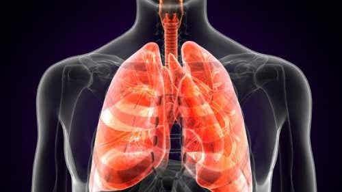 Mikä on keuhkorutto ja miten se oireilee?