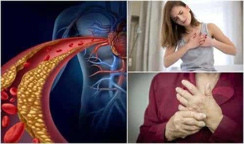 Kärsitkö tietämättäsi korkeasta kolesterolista? Näiden oireiden avulla selvität sen!