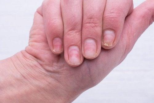 Kynsien keltaisuus: syyt ja luontaishoidot