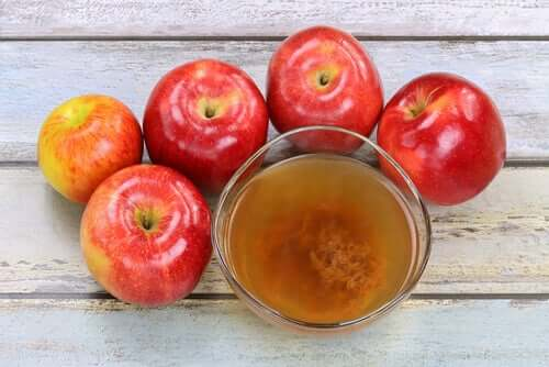 Omenaviinietikan sisältämät hapot auttavat poistamaan syyliä tehokkaasti