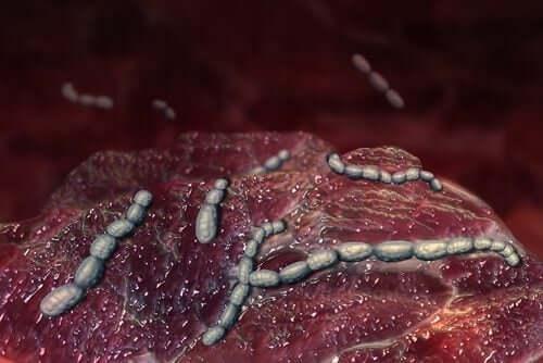 Tulirokko on streptokokkibakteerin aiheuttama sairaus