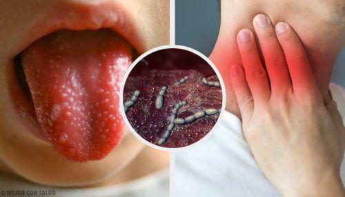 Tulirokko: syyt, oireet ja hoito