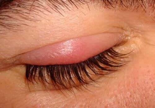 Luomitulehdus saa silmäluomen punoittamaan ja turpoamaan