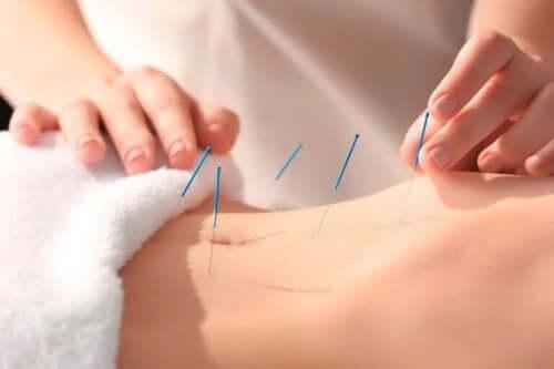 akupunktion hyödyt ihmiselle