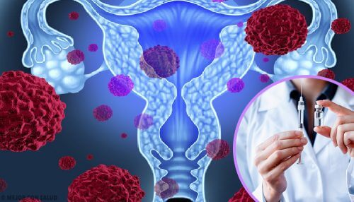 Ihmisen papilloomavirus eli HPV