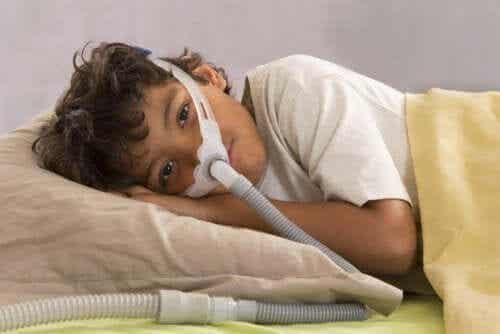 Obstruktiivinen uniapnea lapsilla