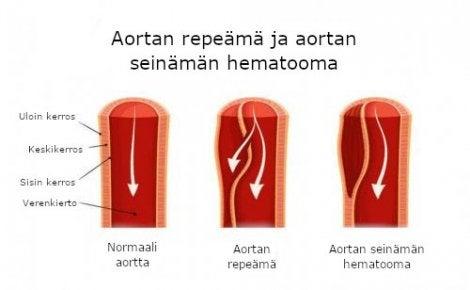 aortan repeämä ja hematooma