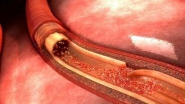 Aortan repeämä: mikä se on ja mistä se johtuu