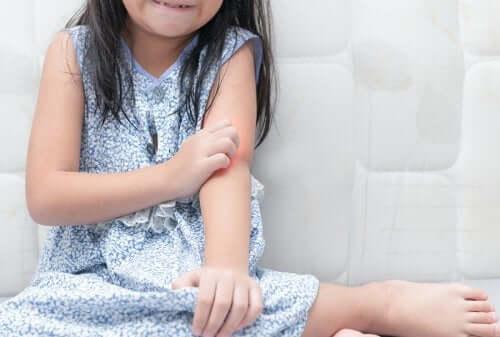 Psoriasis lapsella