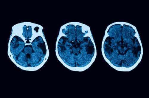 Aivokuoren atrofian diagnoosi ja hoito