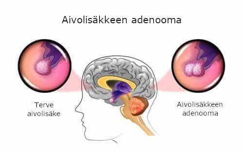 Aivolisäkkeen adenooman aiheuttajat ja oireet