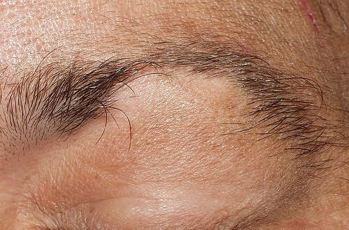 Kun hiustenlähtö liittyy sydänkohtaukseen, se voimistuu yleensä pään sivuilla