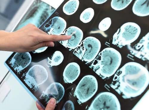 Vakava neurokognitiivinen häiriö (dementia)