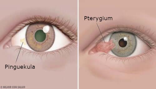 Sarveiskalvon kasvaimet: pinguekula ja pterygium