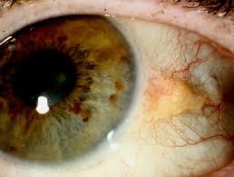 Jos pinguekula aiheuttaa silmää ärsyttäviä oireita, voi silmälääkäri suositella kosteuttavien silmätippojen käyttöä