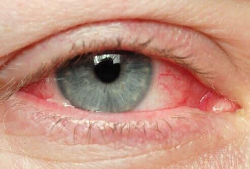 Pinguekulan yleisimpiä oireita ovat esimeriksi silmän kutina, silmämunan punoitus sekä silmien kuivuminen