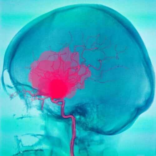 CP-vamma alkaa aivoista.