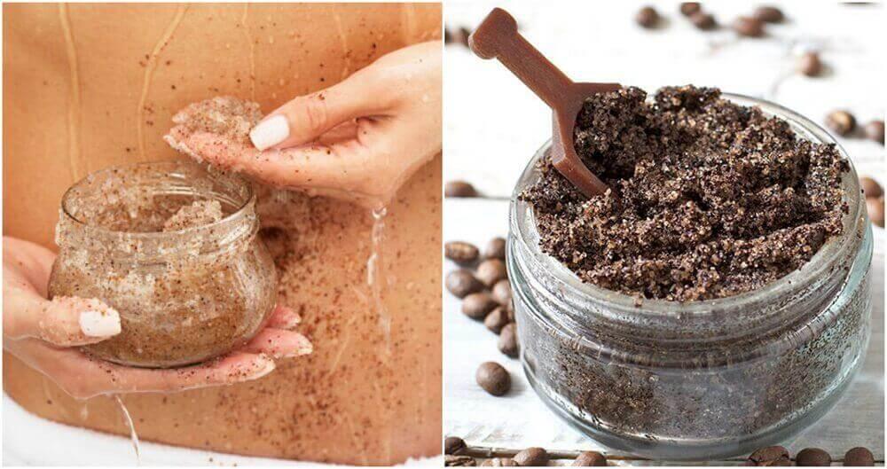 Raskausarpien hoitaminen kahvilla ja kookosöljyllä