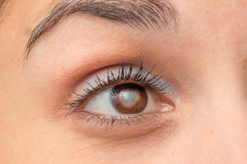 Kaihin oireet voivat muistuttaa vähemmän vakavien silmäongelmien oireita