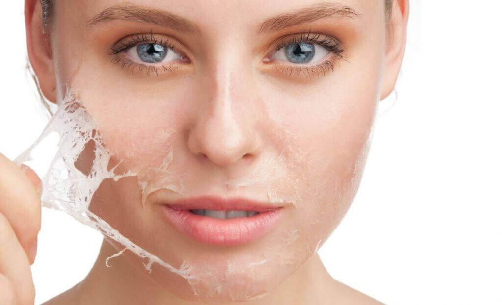 Kasvojen ihokarvojen poisto onnistuu munanvalkuaisesta valmistetulla naamiolla