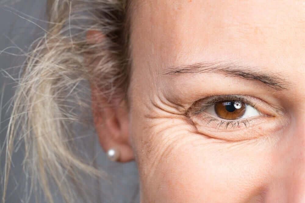 Mistä rypyt silmänurkissa johtuvat?