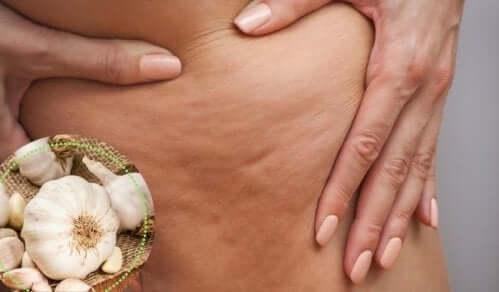 4 tapaa hoitaa selluliittia, ihon sidekudoskerroksen tulehdusta