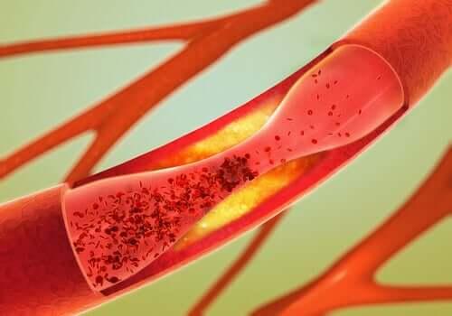 Kolesterolin ylläpitäminen terveellä tasolla voi auttaa laskemaan vaskulaarisen dementian riskiä, sillä normaalin kolesterolin tiedetään laskevan aivohalvauksen riskiä