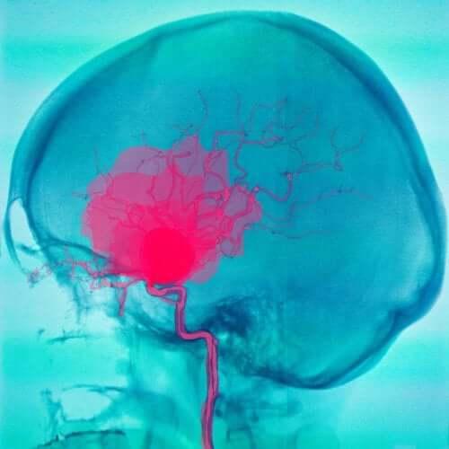 Kovakalvonalainen ja lukinkalvonalainen verenvuoto