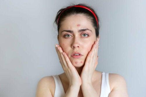 Kuukautisten aikana ilmenevä akne vaikuttaa enimmäkseen kasvoissa, mutta sitä voi esiintyä myös selässä ja rinnassa