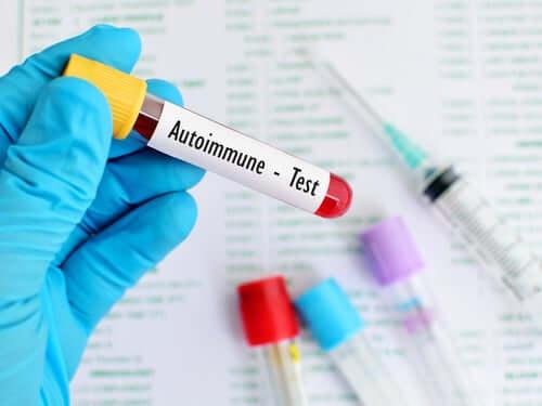 Autoimmuunisairauksien tapauksessa hoidosta ja ehkäisystä on vaikeaa puhua, sillä näiden häiriöiden alkuperää ei ole edes selvitetty kunnolla