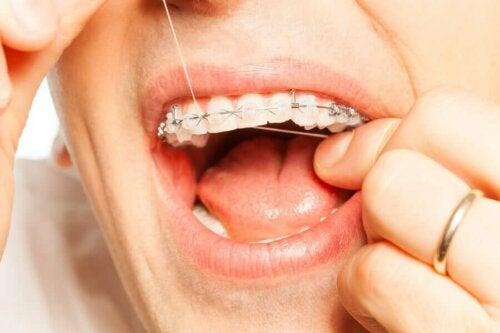 hammaslangan tulisi olla välttämätön osa hampaiden säännöllistä puhdistusta niin oikomishoidon aikana kuin normaalissa hampaiden puhdistusrutiinissa