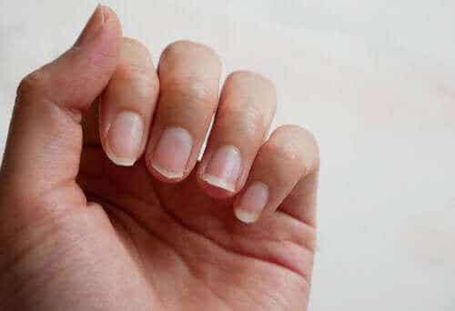 Hauraiden kynsien vahvistaminen luonnollisesti