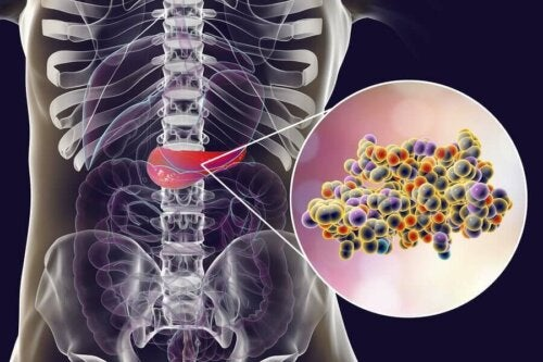 Veren epävakaa glukoosipitoisuus oletettavasti stimuloi insuliinin tuotantoa haimassa, joka taas lisää diabeteksen, ylipainon ja liikalihavuuden riskiä