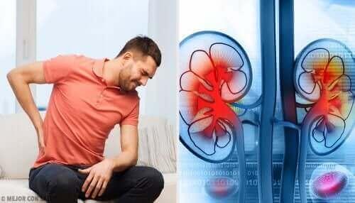 Munuaispaiseet voivat aiheuttaa kipua selässä
