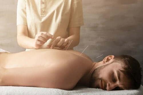 Kuinka akupunktio auttaa nivelkivun hoidossa?
