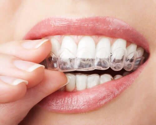 Pienten liikkeiden ansiosta näkymätön oikomishoito voi joissain tapauksissa saavuttaa haluttuja tuloksia jopa lyhyemmässä ajassa kuin hammasraudoilla tehtävä hoito