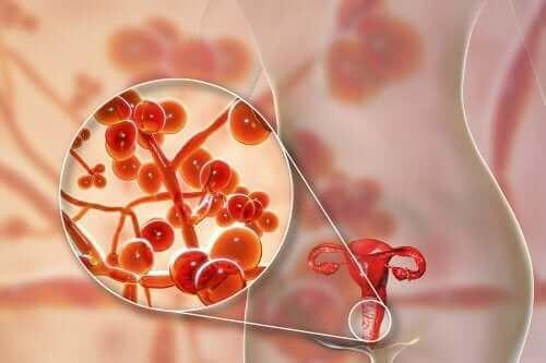 Mycoplasma genitalium: syyt, oireet ja hoito
