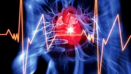 Sydänpussin nestekertymä liittyy usein johonkin sairauteen