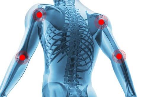 Synoviaaliniveliä suojaava rustokerros peittää luita ympäröivien nivelten pinnat niin, että luiden päät eivät koskaan joudu suoraan yhteyteen toistensa kanssa