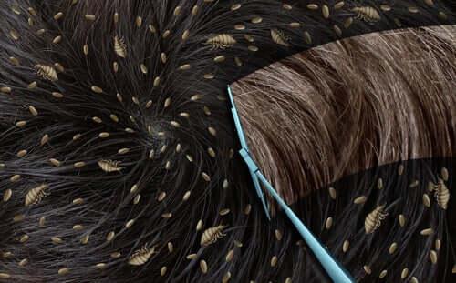 Naarastäit tuottavat erittäin vahvaa liimaa, jonka ansiosta saivareet pysyvät lujasti paikallaan niin, että niitä ei voida poistaa hiuksista edes pesemällä tai raapimalla
